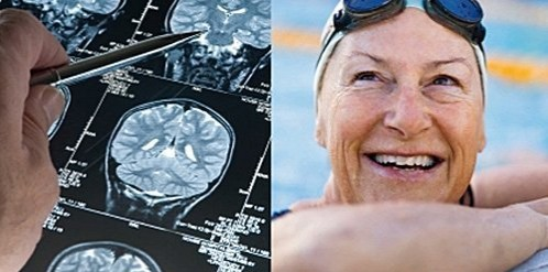 Test Alzheimer