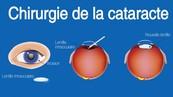 chirurgie-cataracte