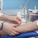 autres tests de dépistage du VIH