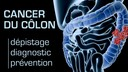 cancer-colon-depistage