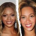 Nez refait Beyonce