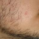 Hyperplasie sébacée