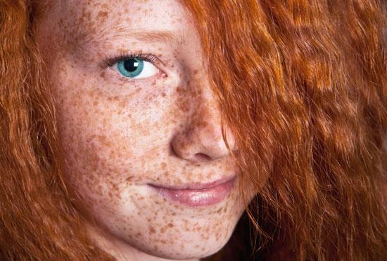 Les taches de pigment sur la rétine des oeil