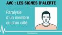 symptomes-avc