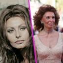 Sophia-Loren-chirurgie-avant-apres