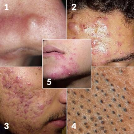 comment reconna tre de l acn maladie de peau comment reconna tre les diff rents sympt mes. Black Bedroom Furniture Sets. Home Design Ideas