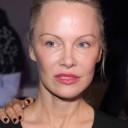 Pamela Anderson - Les stars qui souffrent d'endométriose