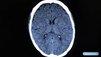 Epilepsie : Le quotidien d'un épileptique