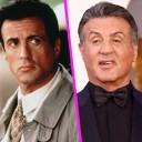stallone-chirurgie-esthetique
